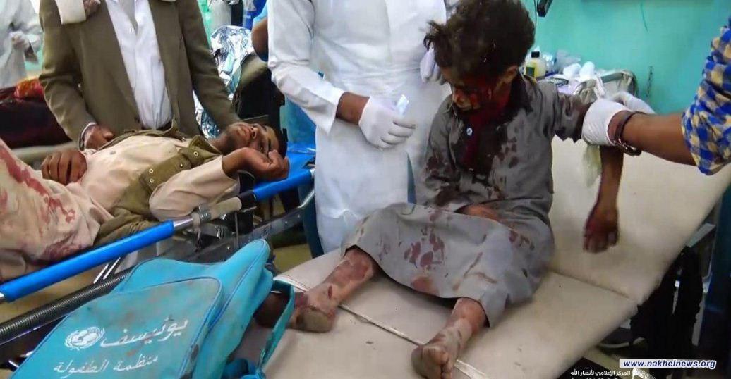 """""""اللوردات"""" البريطاني ينتقد التدخل السعودي الوحشي في اليمن"""